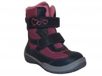 Zvětšit Protetika - Besy, dívčí zimní obuv