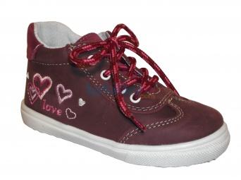 Zvětšit Jonap J011/M srdce - vínová, dětská celoroční obuv