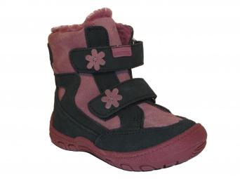 Zvětšit Protetika - Mira, dívčí zimní obuv
