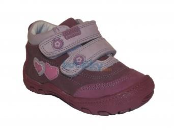 Zvětšit Protetika - Petra, dívčí celoroční obuv